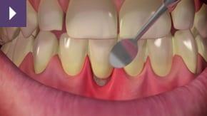 Sensitive Teeth Liverpool