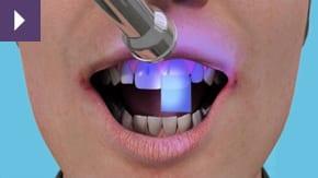 emergency dentist liverpool