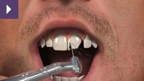 Dental Crowns Liverpool