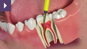 Root Canal treatment Liverpool