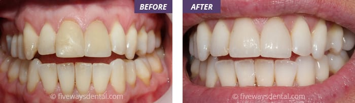 Are you looking for same day dental treatment
