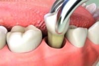You'll be in safe hands with our professional dentists for oral surgery in Liverpool
