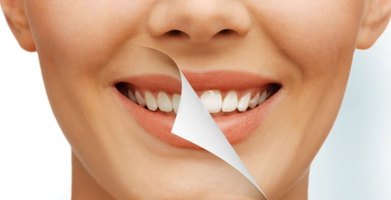 Cosmetic Dentistry Services at Fiveways Dental