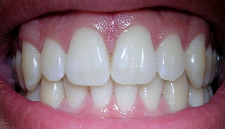 Do you have healthy gums?