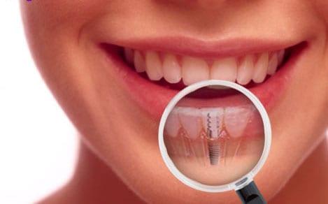 Affordable dental implants from Fiveways Dental
