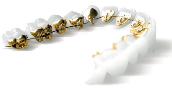 Fiveways Dental incognito braces in Liverpool