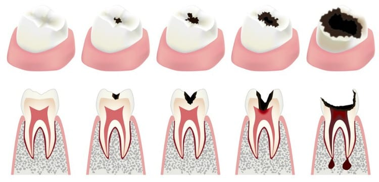 Read more about the article What causes cavities?