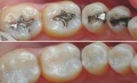 #1 for White Dental Fillings Liverpool