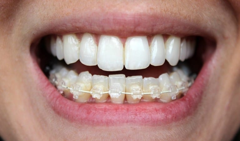 6 month braces in Liverpool