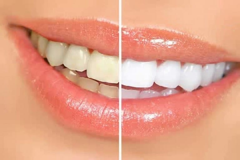 Read more about the article Cosmetic Dentistry at Fiveways Dental