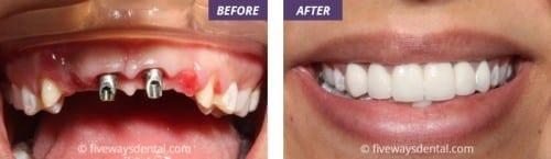 before after dental implants