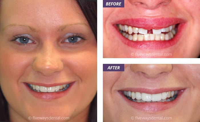 Smile Makeovers in Liverpool at Fiveways Dental Practice