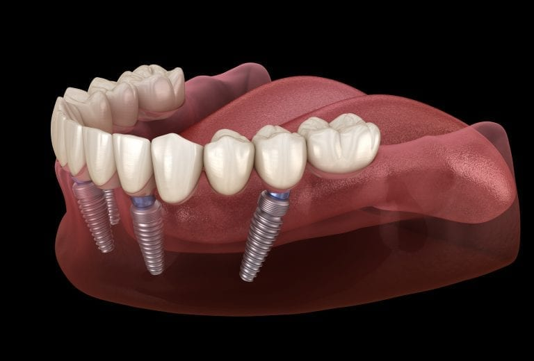 Dental Implants Missing Teeth Solution Liverpool