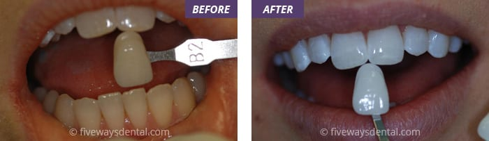 Read more about the article The Two Types of Tooth Whitening We Offer