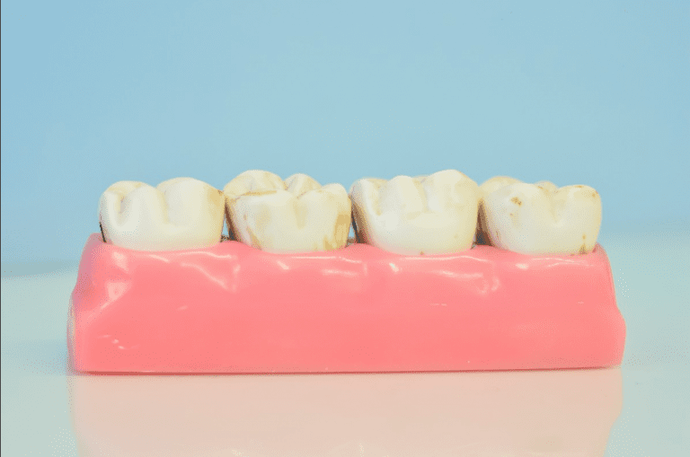 A Brief Guide To Dentures