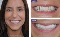 cosmetic dentist Liverpool