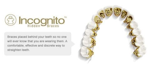 Incognito braces Fiveways Dental