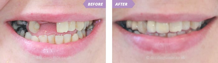 Read more about the article What Are The Treatment Options for Missing Teeth?
