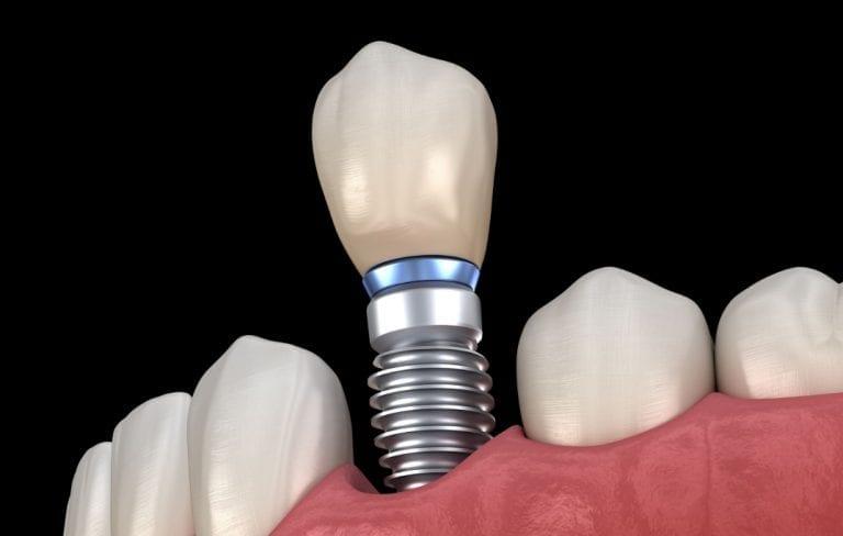Missing Teeth Liverpool Fiveways Dental